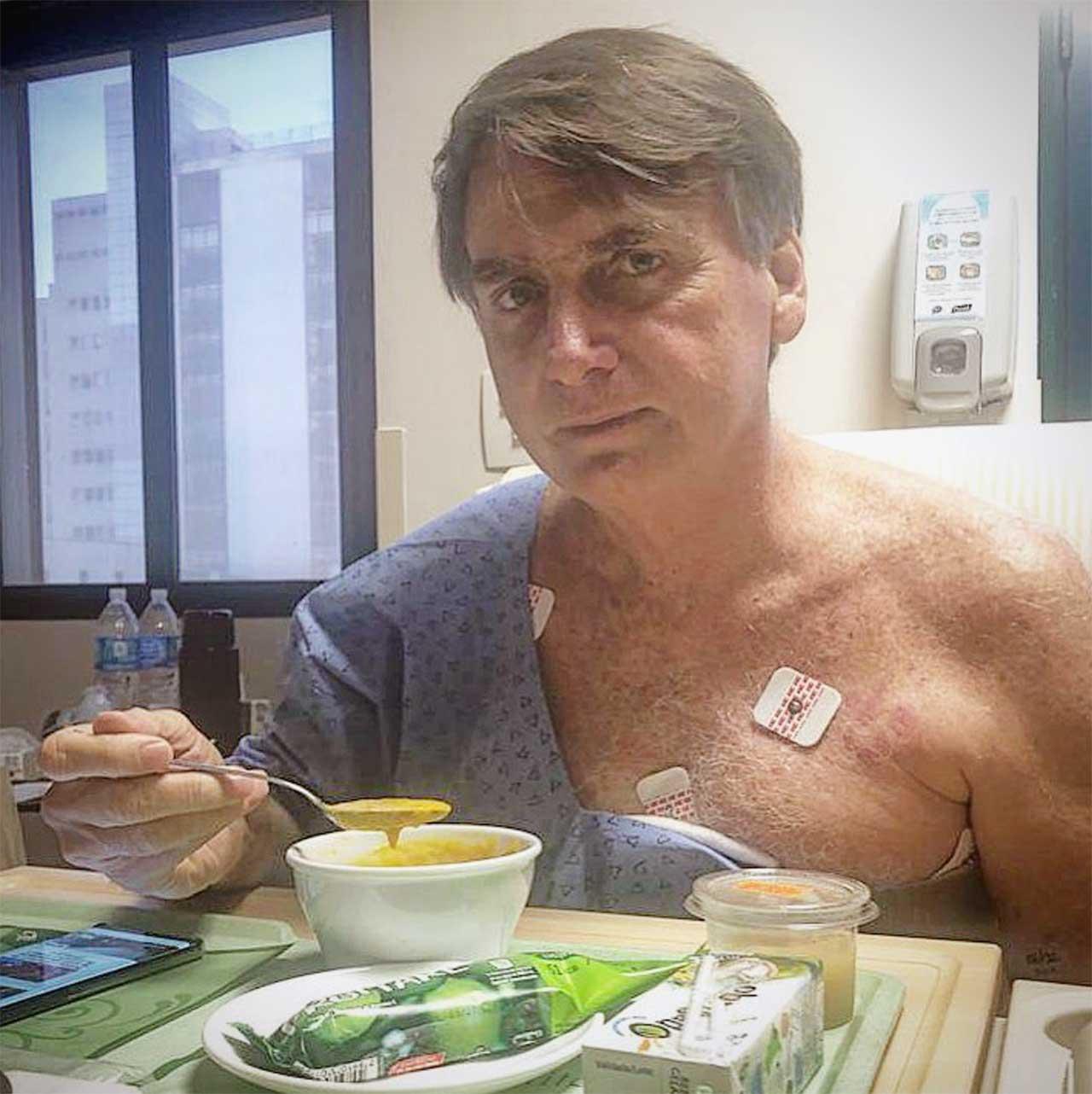 Jair Bolsonaro inicia alimentação com alimentos cremosos no hospital