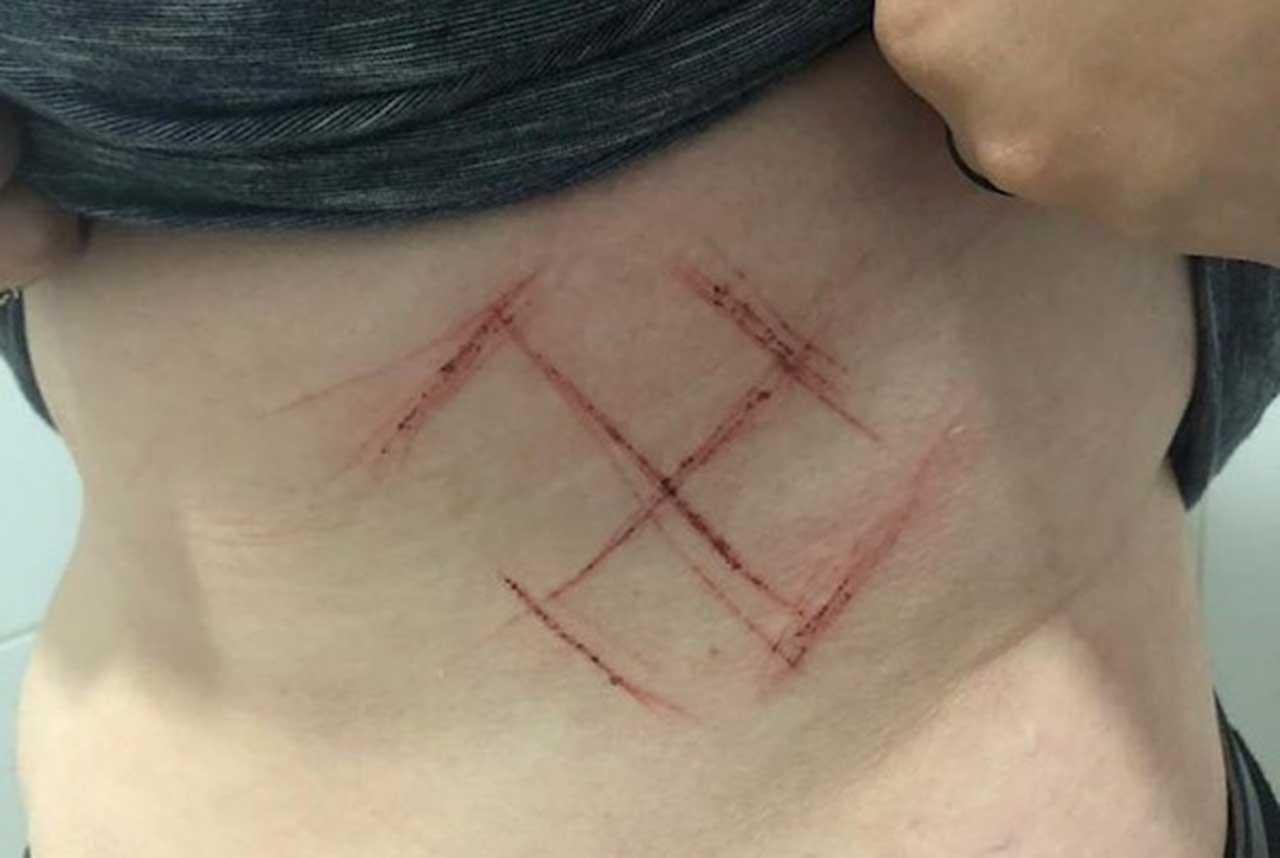 Mulher de 19 anos, militante petista que se automutilou e tentou culpar seguidores de Bolsonaro